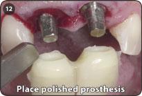 Как сделают коронку если нет зубов